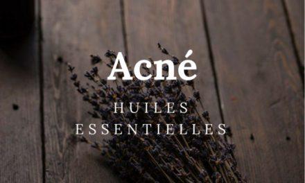 Comment soigner l'acné avec les huiles essentielles ?